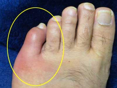 足 指 関節 痛み